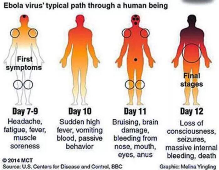 Ebola 0